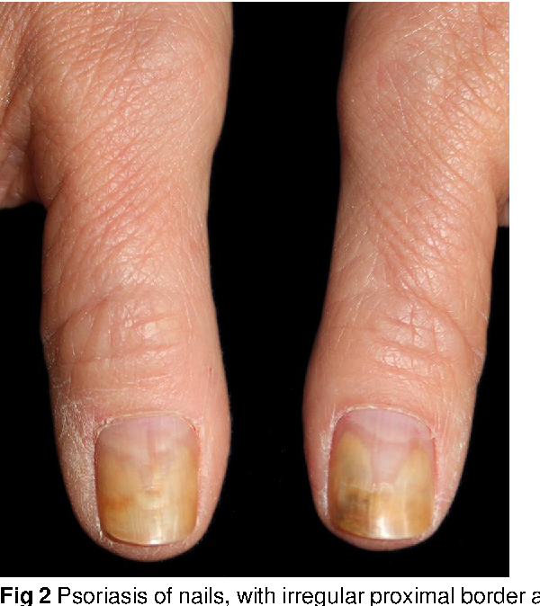 Figure 2 from Fungal nail infection: diagnosis and management ...