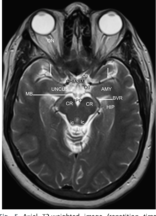 Figure 5 from Normal brain anatomy on magnetic resonance imaging ...