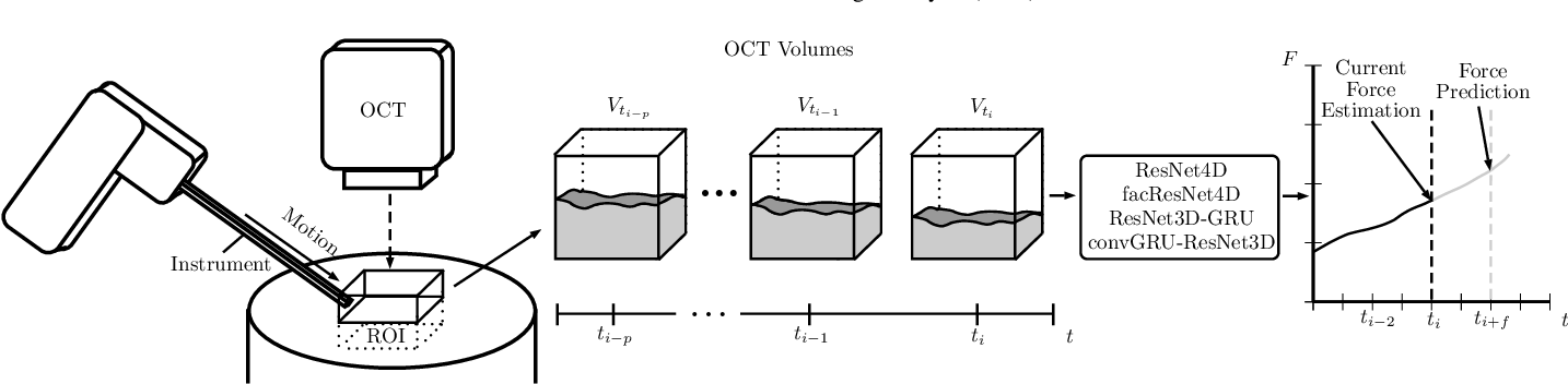 Figure 1 for Deep learning with 4D spatio-temporal data representations for OCT-based force estimation