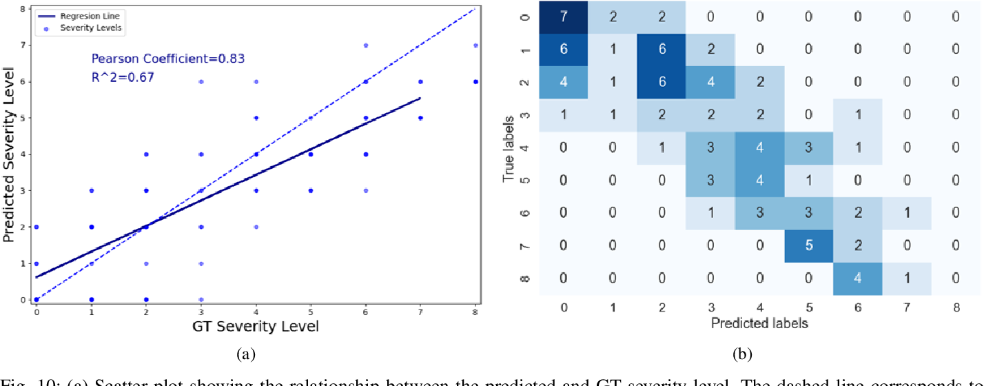 Figure 2 for COVID-19 in CXR: from Detection and Severity Scoring to Patient Disease Monitoring