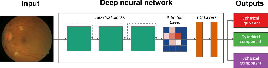 Figure 2 for Deep learning for predicting refractive error from retinal fundus images
