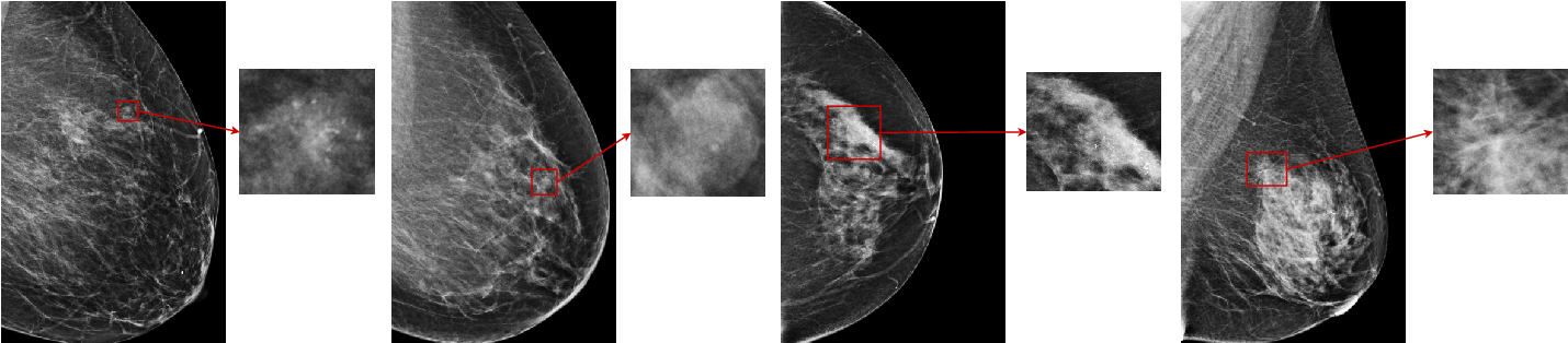 Figure 1 for An interpretable classifier for high-resolution breast cancer screening images utilizing weakly supervised localization