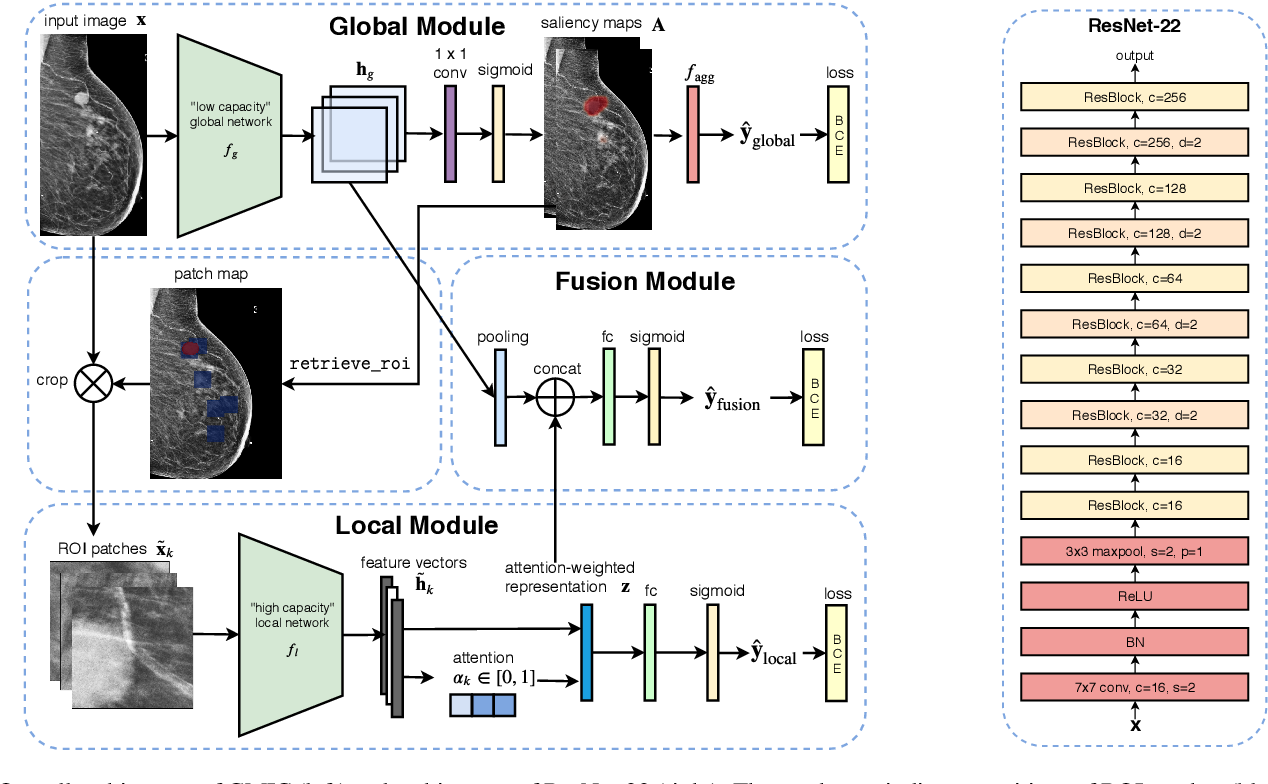 Figure 3 for An interpretable classifier for high-resolution breast cancer screening images utilizing weakly supervised localization