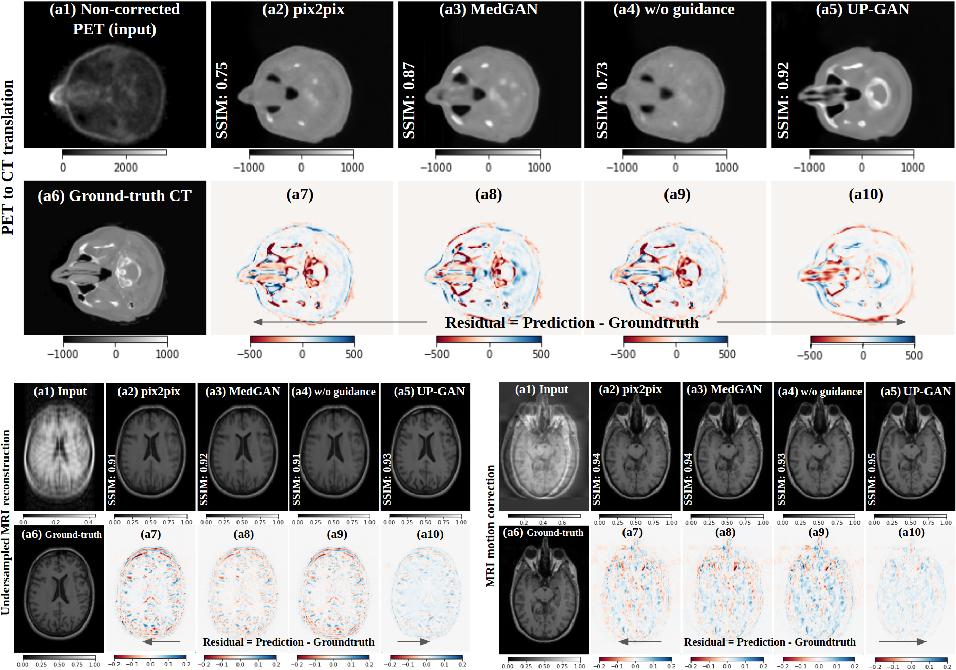 Figure 4 for Uncertainty-Guided Progressive GANs for Medical Image Translation