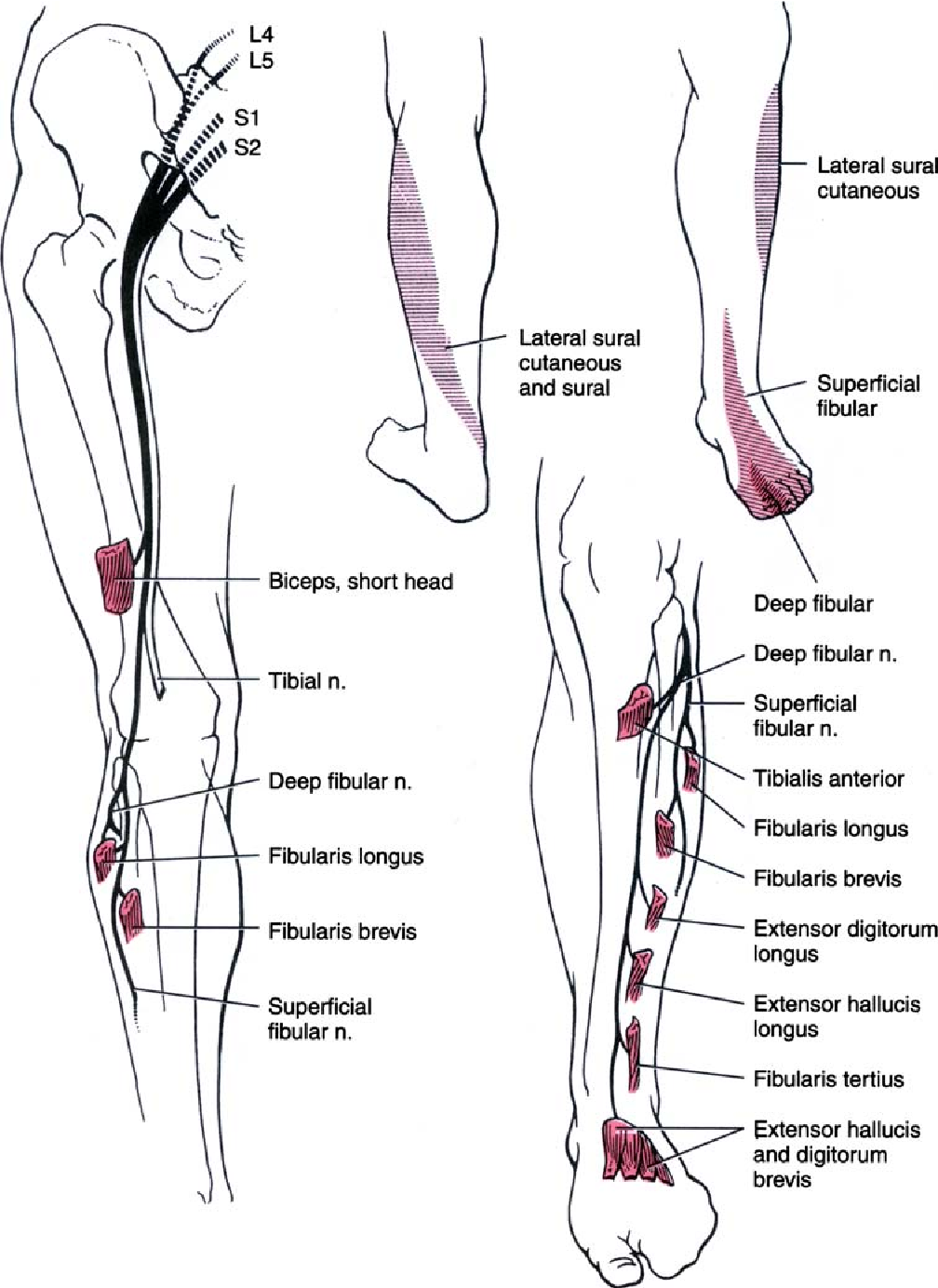 Evaluation and treatment of peroneal neuropathy - Semantic Scholar