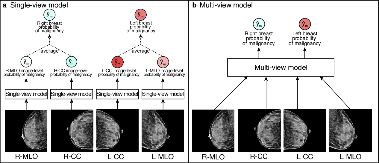 Figure 3 for Meta-repository of screening mammography classifiers