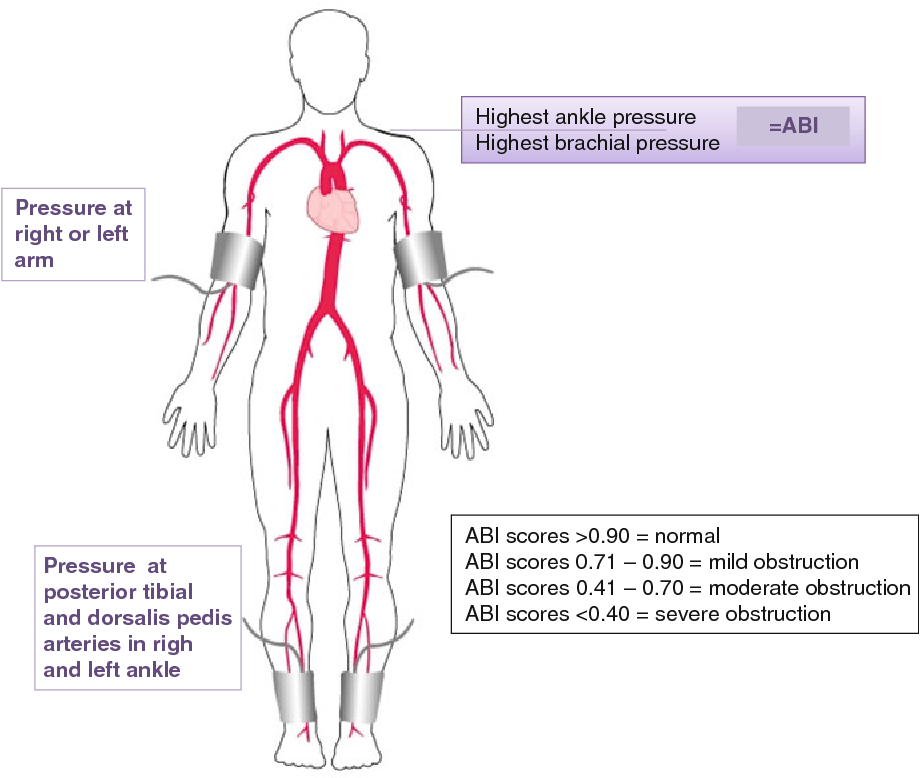 Figure 3 from Antiplatelet therapy in peripheral artery disease ...