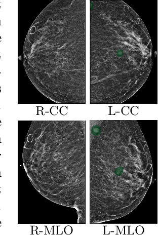 Figure 2 for Globally-Aware Multiple Instance Classifier for Breast Cancer Screening