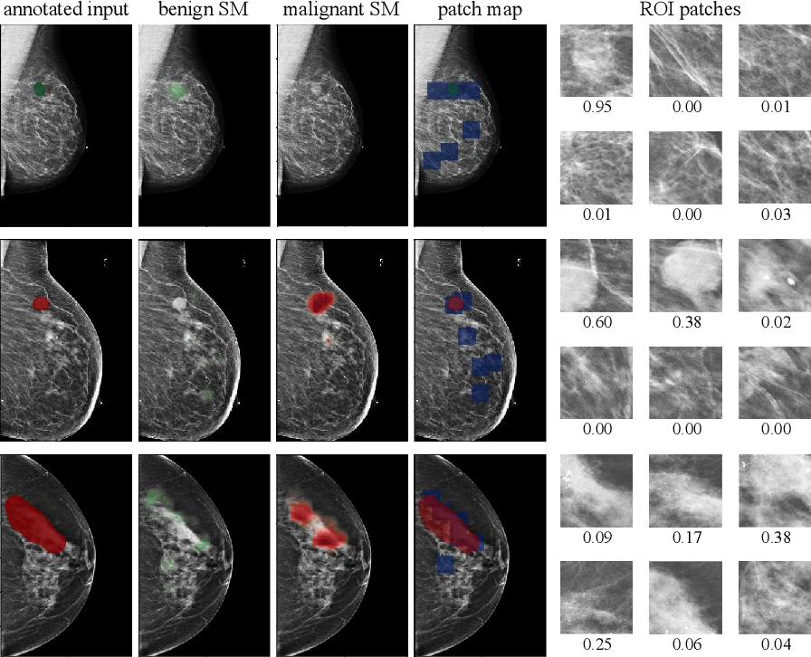 Figure 4 for Globally-Aware Multiple Instance Classifier for Breast Cancer Screening