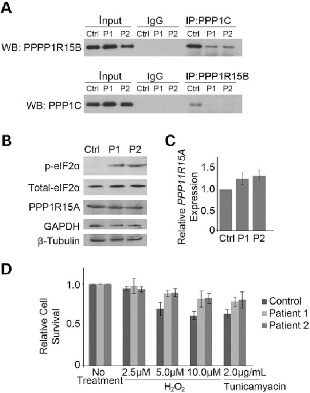 Figure 3. The p.R658C PPP1R15Bmutation substantially interferes with the PPP1C interaction, leading to an increase in p-eIF2α and protection from cellular stress. (A) PPP1R15B and PPP1C were immunoprecipitated from control and patient lymphoblast extracts, and western blot analysis performed for the reciprocal protein. PPP1R15B forms a strong interaction in control cells, which is lost with the cells harboring the p.R658.C PPP1R15B mutation. Control reactions were done with IgG. (B) Western blot analysis of extracts from control and patient lymphoblasts demonstrates elevated levels of p-eIF2α. Total eIF2α and PPP1R15A were unchanged. (C) Real-time RT–PCR analysis of PPP1R15A mRNA expression in control and patient cells relative to controls, corrected to GAPDH. Graphed data represent the mean relative expression level, and error bars depict standard deviation from three technical replicates. Expression of PPP1R15A is unaltered. (C) Cell viability of patient and control lymphoblast cultures following exposure to oxidative (H2O2) or ER (tunicamyacin) stress for 48 h as measured by trypan blue dye exclusion. Patient cells display increased viability following 5 µ H202, 10 µ H202 and tunicamyacin treatments. One hundred cells were counted for each experiment; graphed data represent the mean of three technical replicates and error bars depict standard deviation.