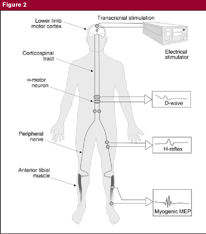 PDF] Intraoperative neurophysiologic monitoring during spinal