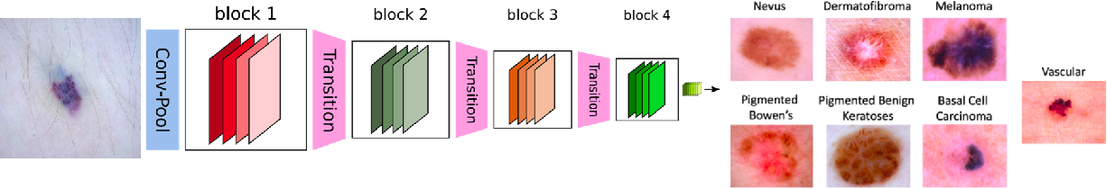 Figure 1 for What evidence does deep learning model use to classify Skin Lesions?