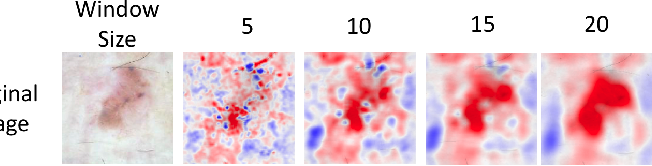 Figure 3 for What evidence does deep learning model use to classify Skin Lesions?