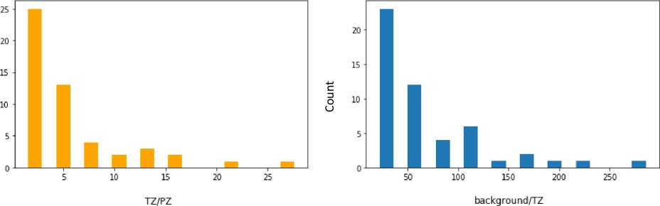Figure 2 for Automatic segmentation of prostate zones