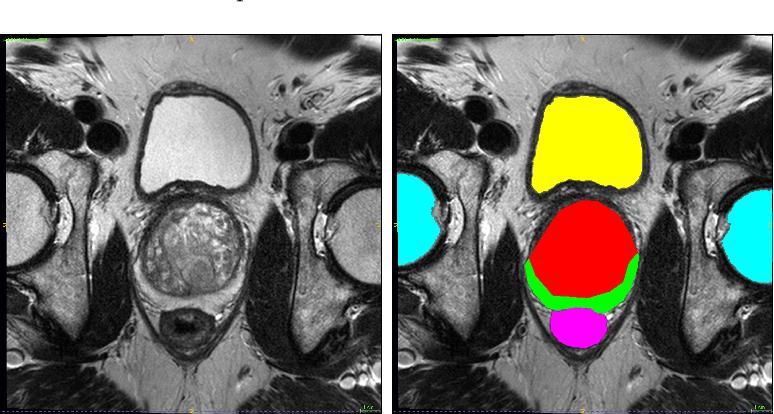 Figure 3 for Automatic segmentation of prostate zones