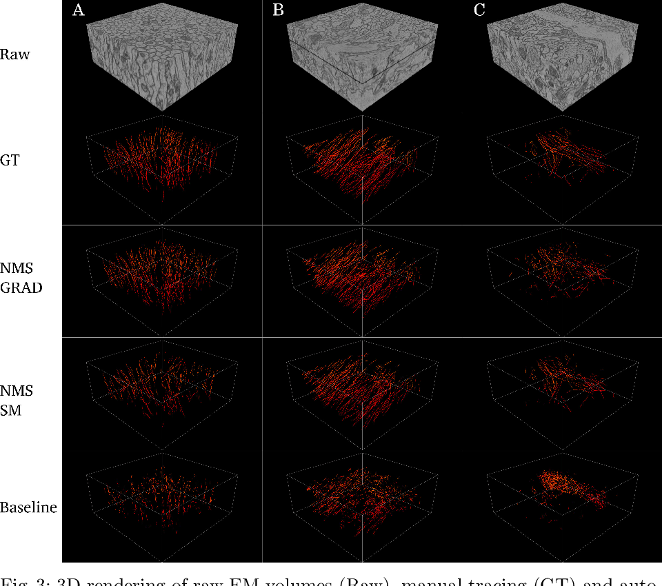 Figure 4 for Microtubule Tracking in Electron Microscopy Volumes