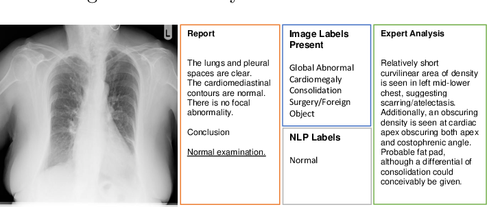 Figure 2 for Caveats in Generating Medical Imaging Labels from Radiology Reports