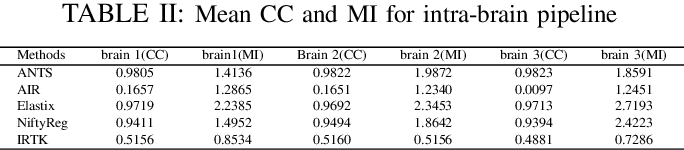 Figure 3 for Performance of Image Registration Tools on High-Resolution 3D Brain Images