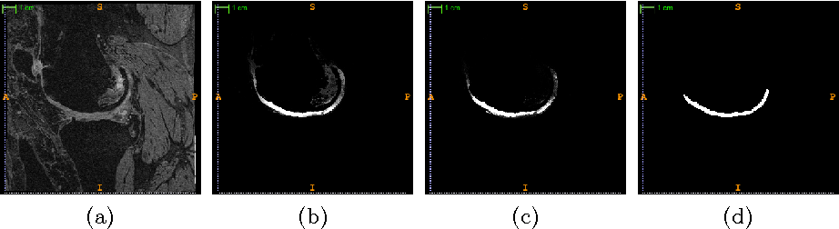 Figure 3 for Semantic Context Forests for Learning-Based Knee Cartilage Segmentation in 3D MR Images