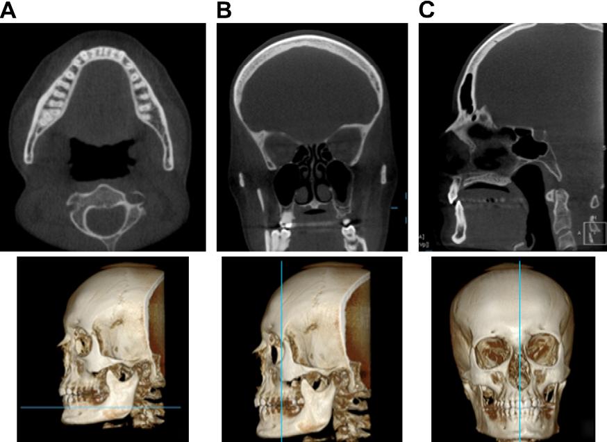 Cone beam tomographic imaging anatomy of the maxillofacial region ...