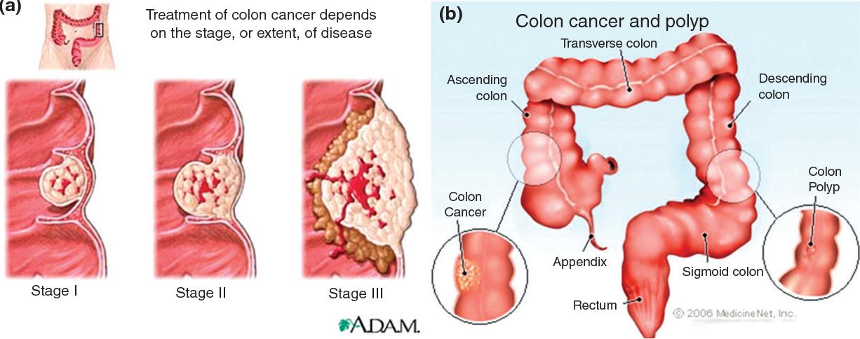 Combinatorial nanomedicines for colon cancer therapy. - Semantic Scholar