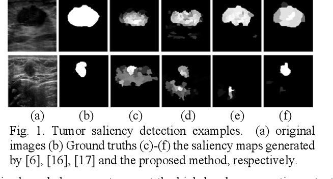 Figure 1 for Breast Anatomy Enriched Tumor Saliency Estimation