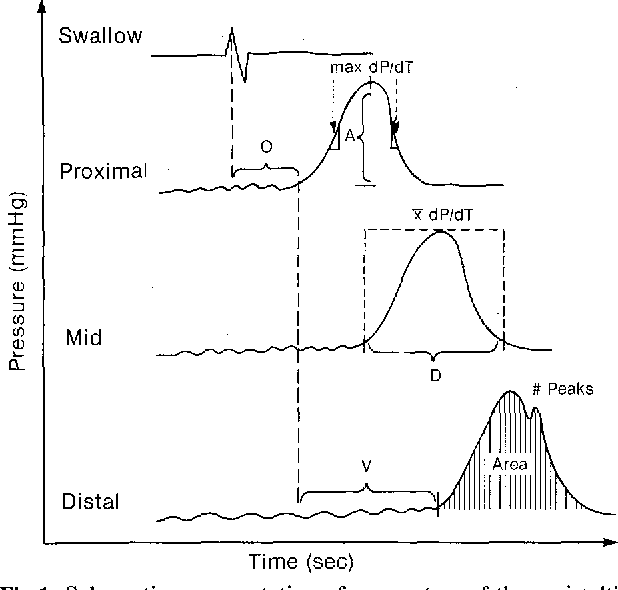 schematic representation of parameters of the peristaltic wave which are  analyzed directly by