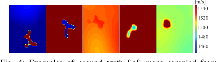Figure 4 for Training Variational Networks with Multi-Domain Simulations: Speed-of-Sound Image Reconstruction