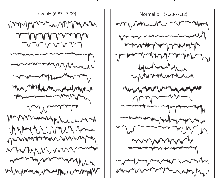 Figure 1 for Highly comparative fetal heart rate analysis