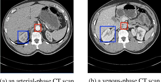 Figure 2 for Phase Collaborative Network for Multi-Phase Medical Imaging Segmentation