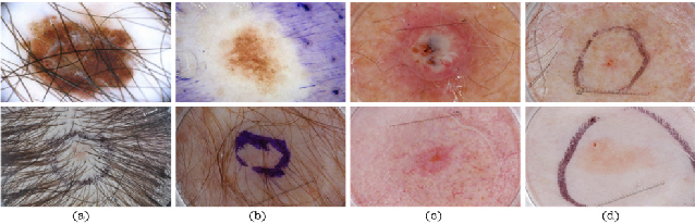 Figure 1 for SANet:Superpixel Attention Network for Skin Lesion Attributes Detection