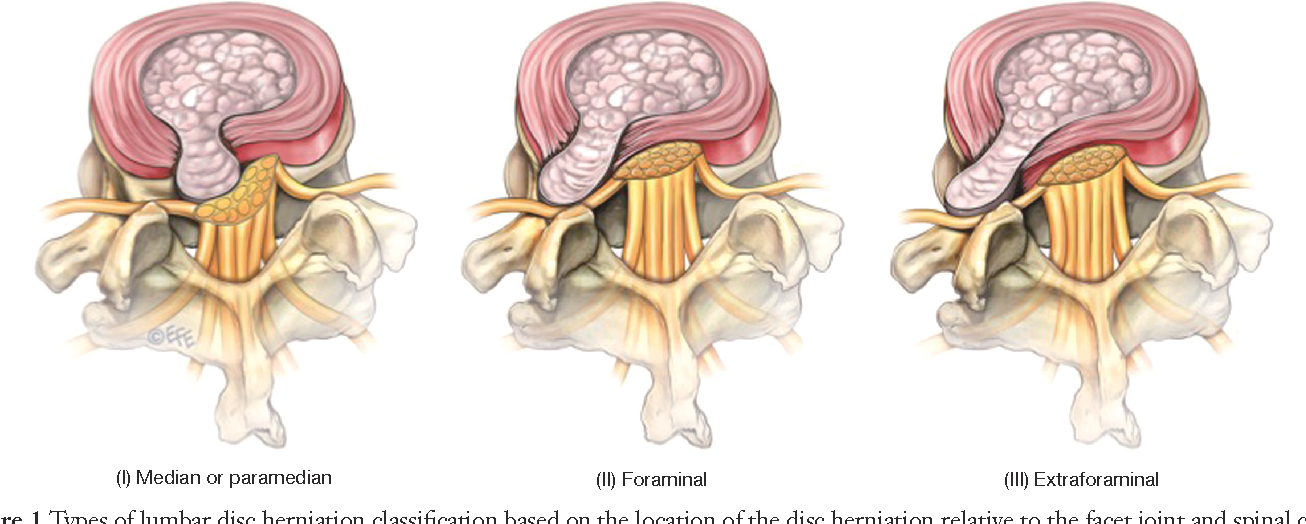 Surgical Treatment Of Far Lateral Lumbar Disc Herniation A Safe And