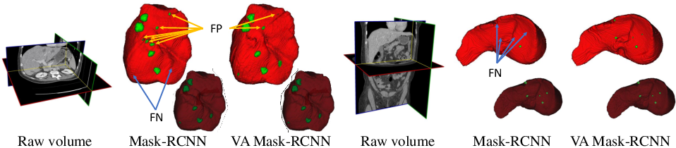 Figure 1 for Volumetric Attention for 3D Medical Image Segmentation and Detection