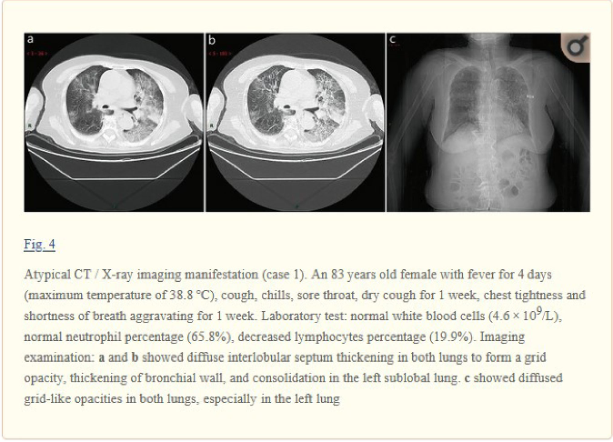 Figure 3 for COVID-19-CT-CXR: a freely accessible and weakly labeled chest X-ray and CT image collection on COVID-19 from biomedical literature