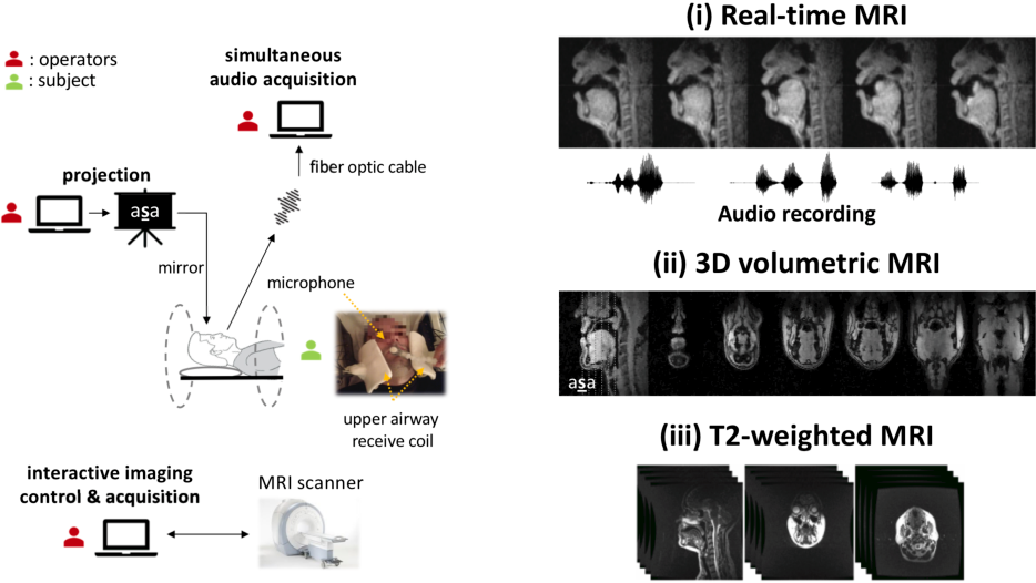 Figure 2 for A multispeaker dataset of raw and reconstructed speech production real-time MRI video and 3D volumetric images