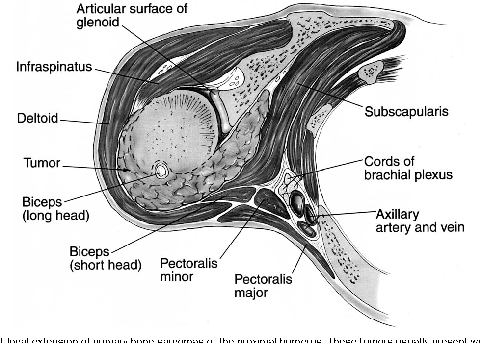 Limb-sparing resections of the shoulder girdle. - Semantic Scholar