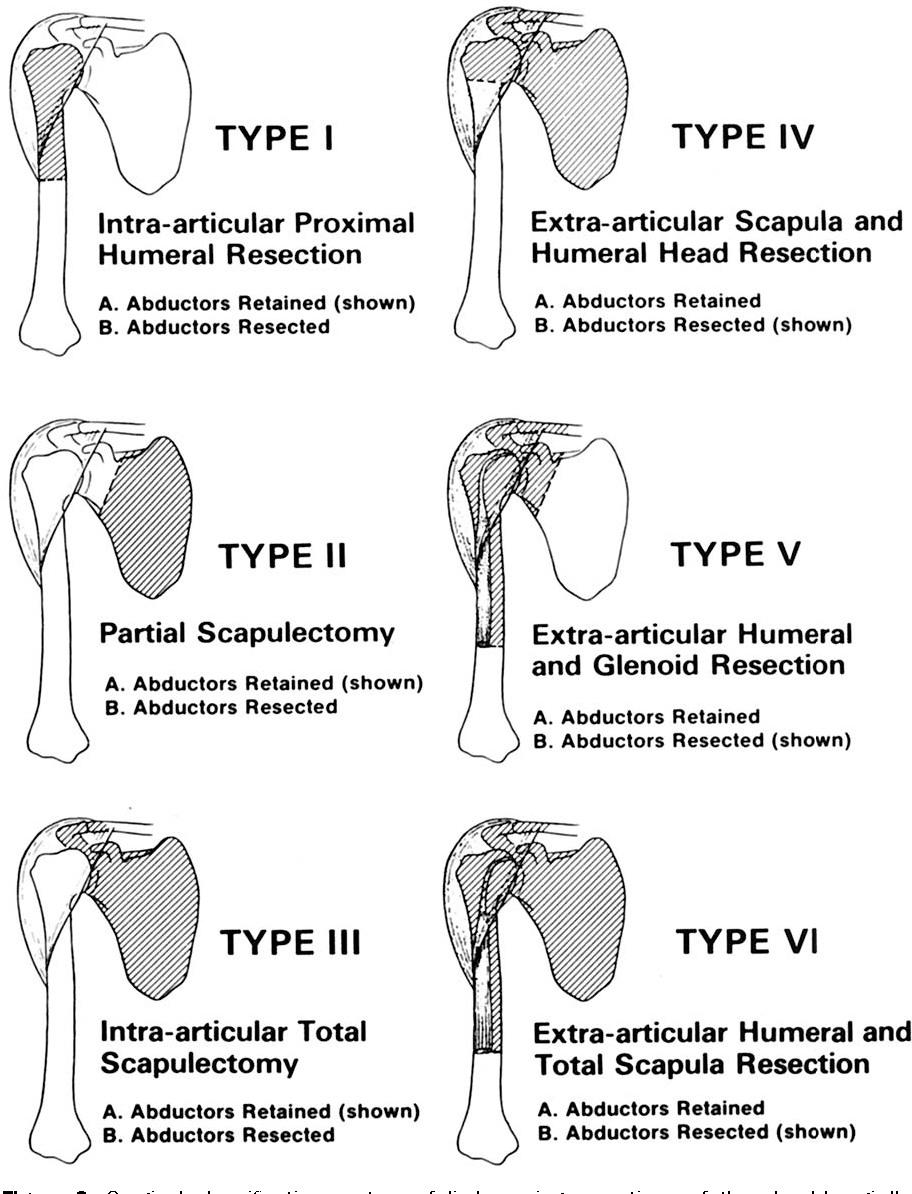 Figure 2 from Limb-sparing resections of the shoulder girdle ...