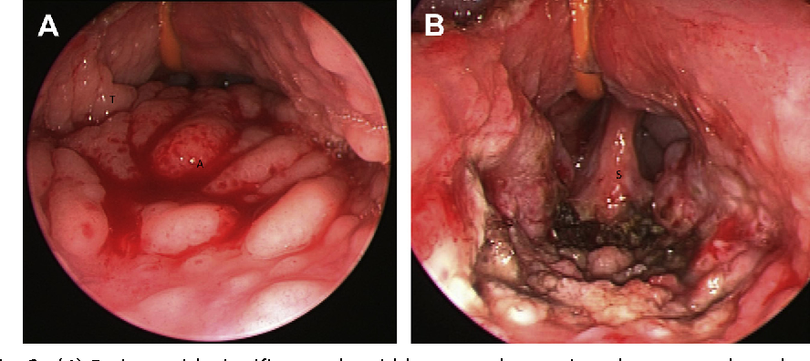 Figure 2 From Tonsillectomy And Adenoidectomy - Semantic -7996