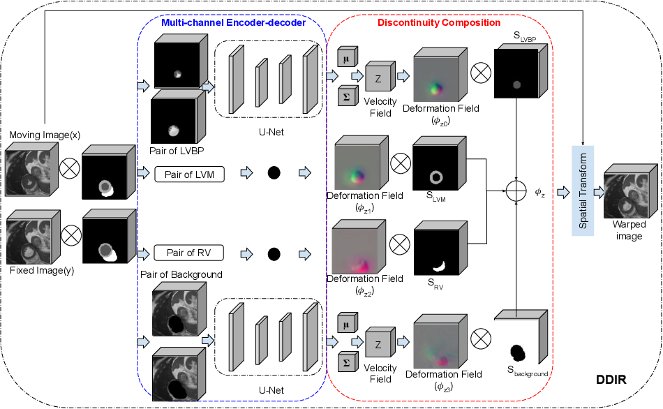 Figure 1 for A Deep Discontinuity-Preserving Image Registration Network