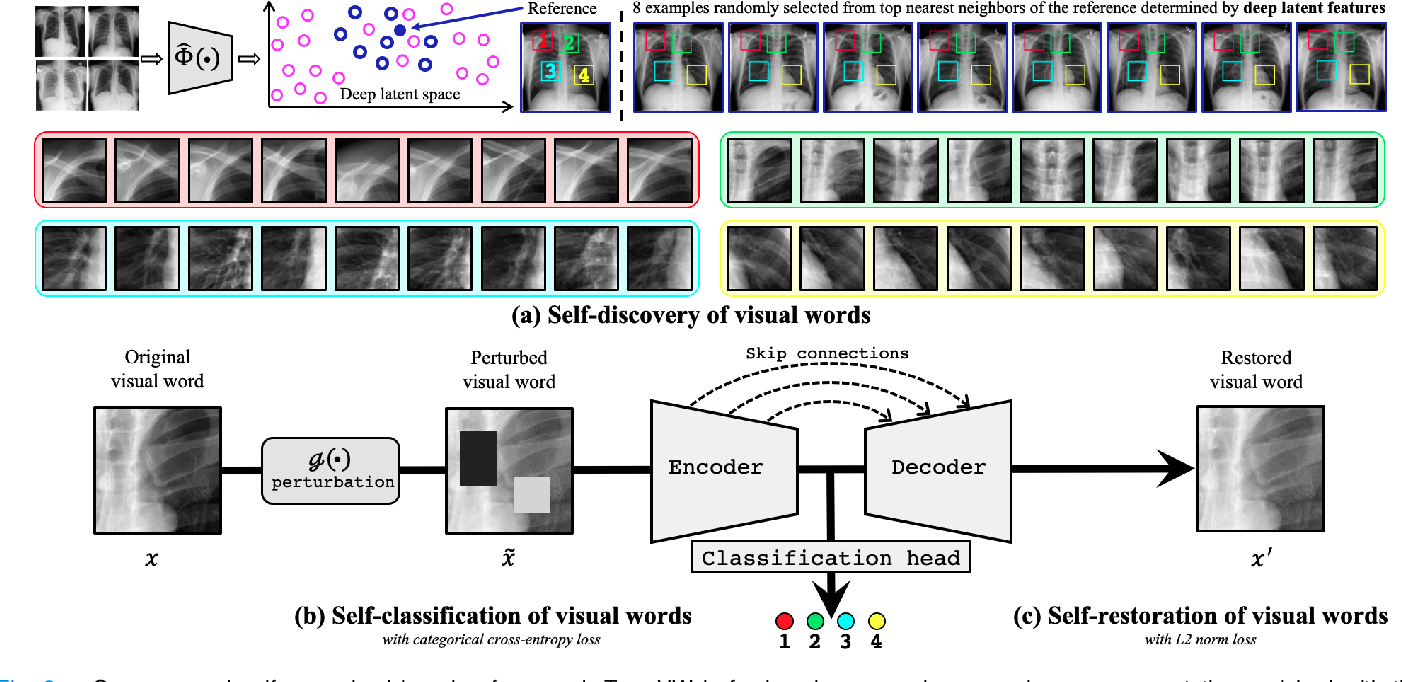 Figure 2 for Transferable Visual Words: Exploiting the Semantics of Anatomical Patterns for Self-supervised Learning