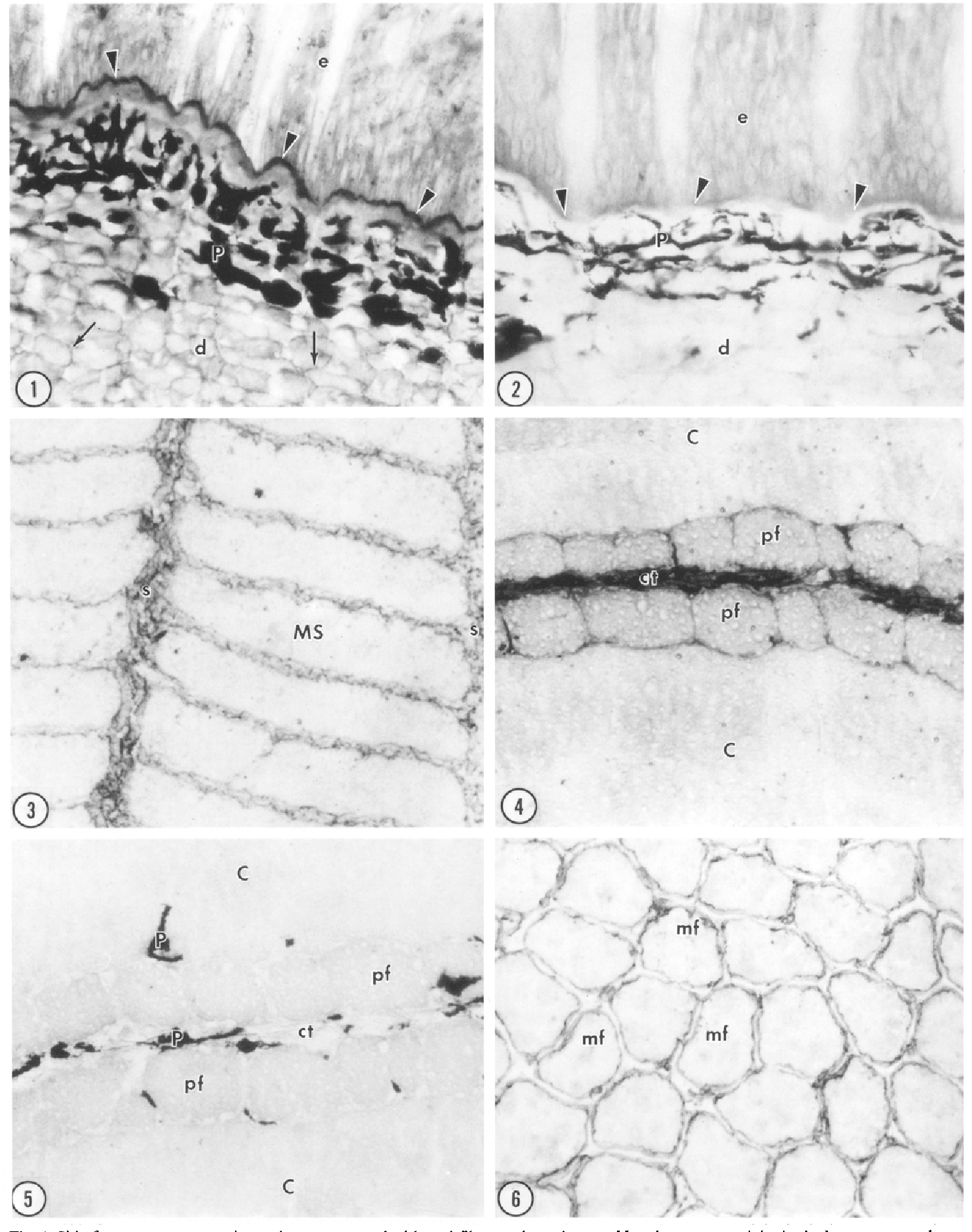 Fig. 1. Skin from an upstream migrant lamprey treated with anti-fibronectin antiserum. Note immunoreactivity in the basement membrane (arrowheads) beneath epidermis (e) and between collagen fibers (arrows) of dermis (d). P pigment, x 390
