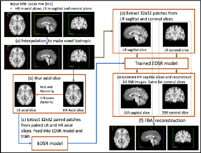 Figure 1 for Self Super-Resolution for Magnetic Resonance Images using Deep Networks