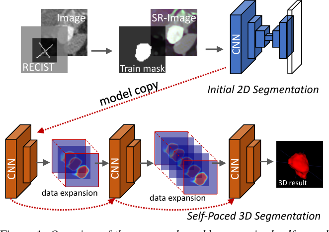 Figure 1 for Accurate Weakly Supervised Deep Lesion Segmentation on CT Scans: Self-Paced 3D Mask Generation from RECIST