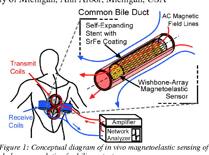 diagram of bile duct stent