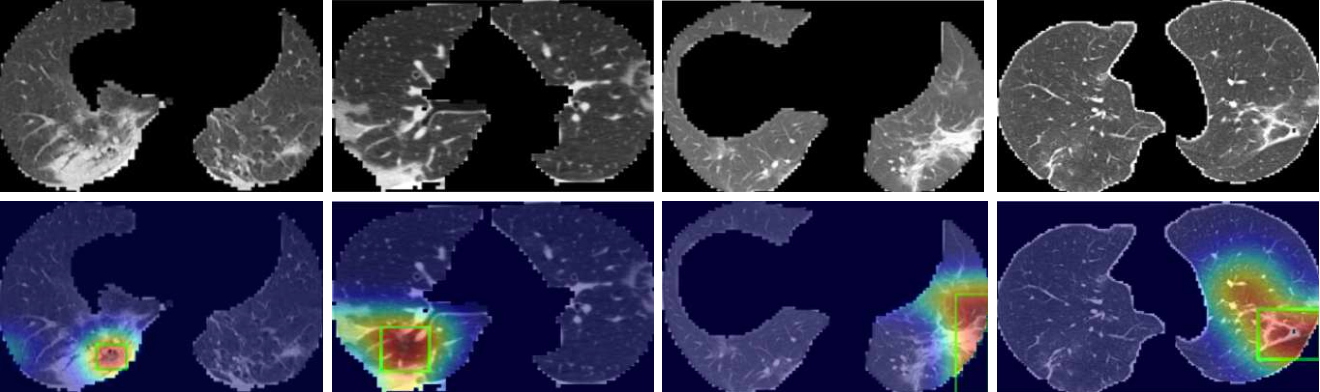 Figure 3 for Explainable AI For COVID-19 CT Classifiers: An Initial Comparison Study