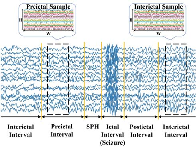 Figure 1 for An End-to-End Deep Learning Approach for Epileptic Seizure Prediction
