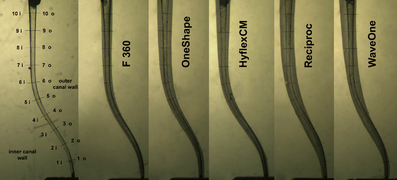 Figure 1 from Shaping ability of different nickel-titanium