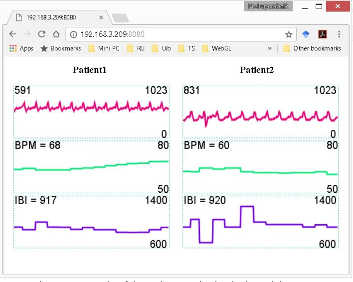 Figure 6 from Prototype of group heart rate monitoring with NODEMCU