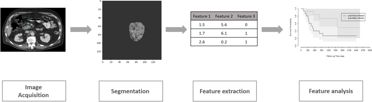 Figure 1 for Improving Prognostic Value of CT Deep Radiomic Features in Pancreatic Ductal Adenocarcinoma Using Transfer Learning