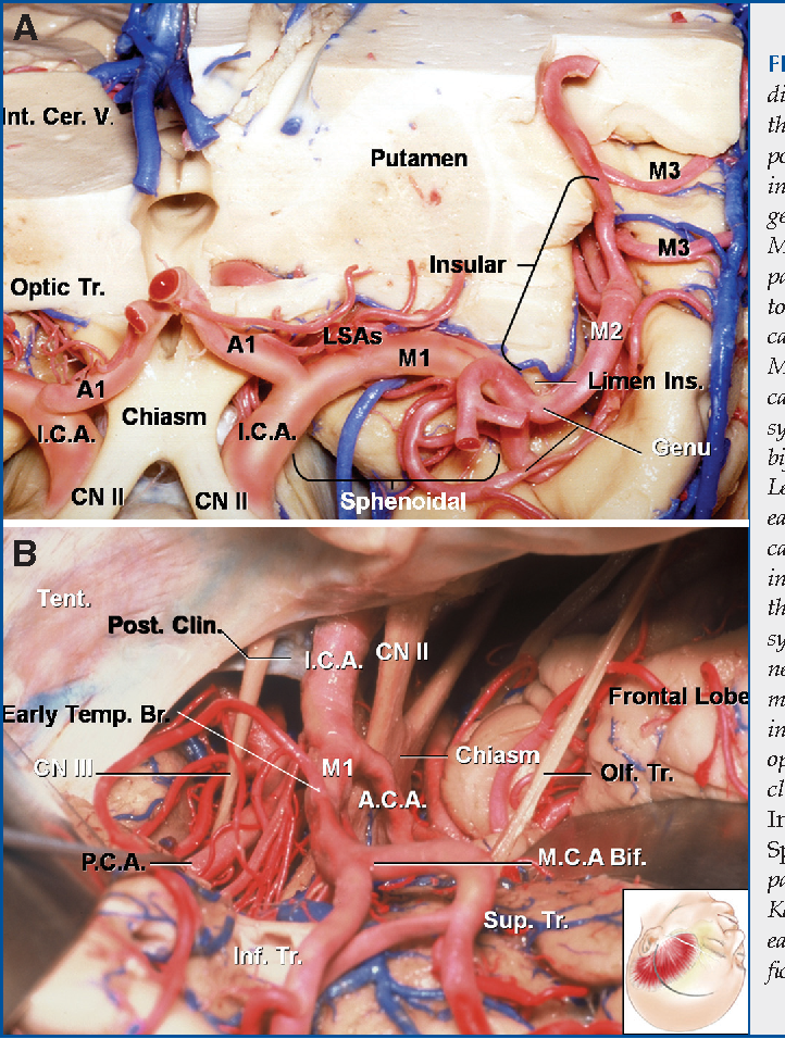 Microsurgical and angiographic anatomy of middle cerebral artery ...
